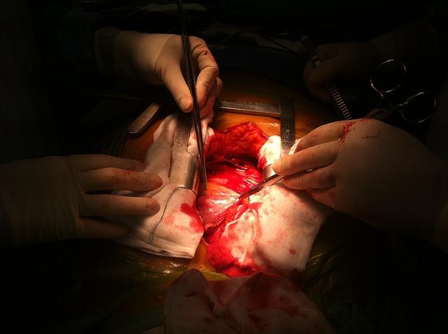 רשלנות רפואית בעת ניתוח לב פתוח
